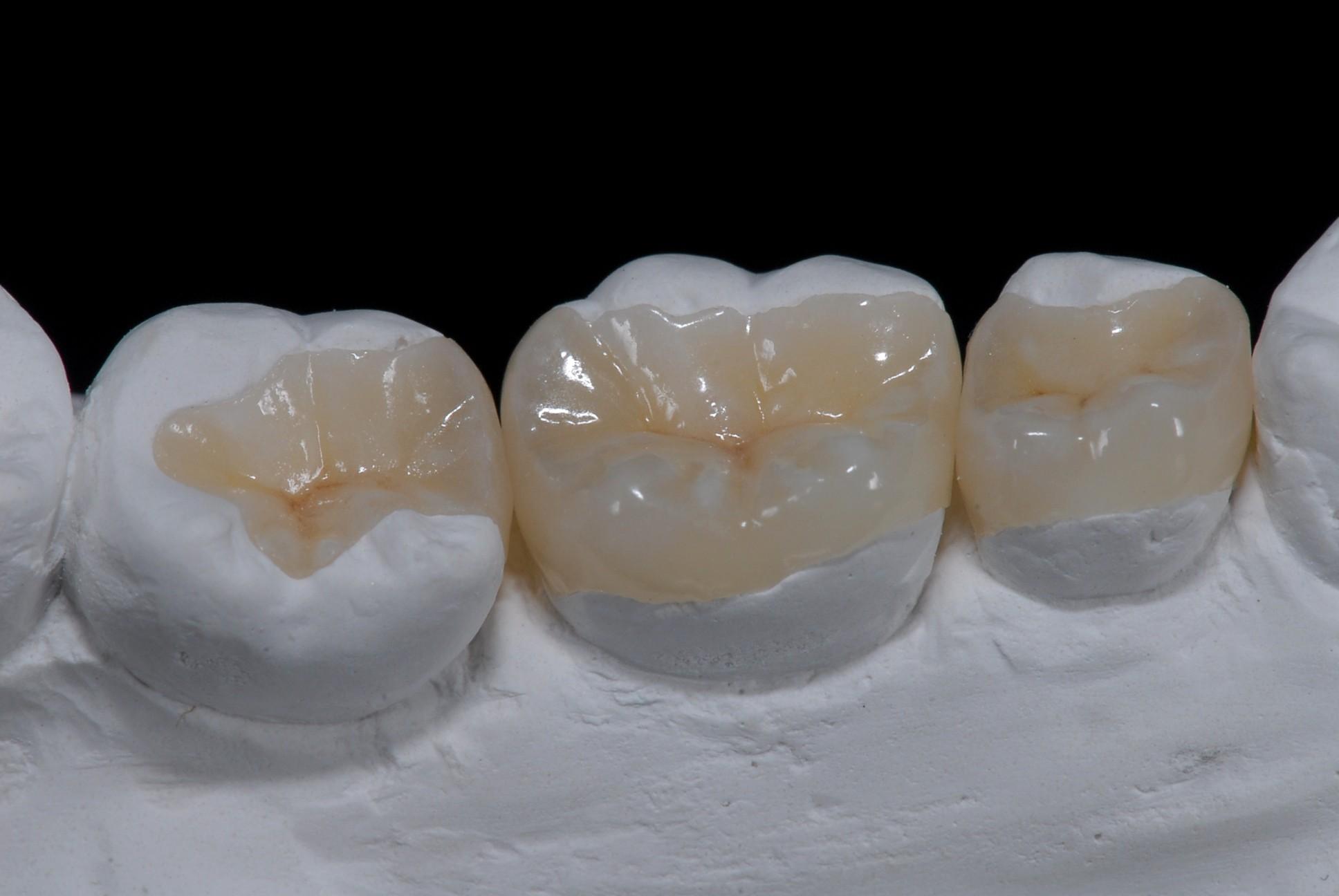Inlays / Onlays | Sacks & Schwarzwald Family Dentistry